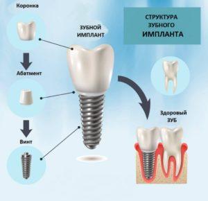 struktura_zubnogo_implanta